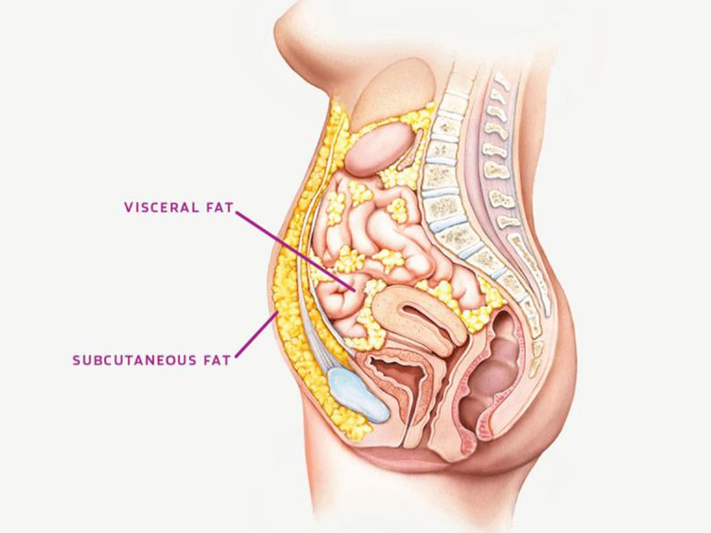 Picture of Stomach with Fat