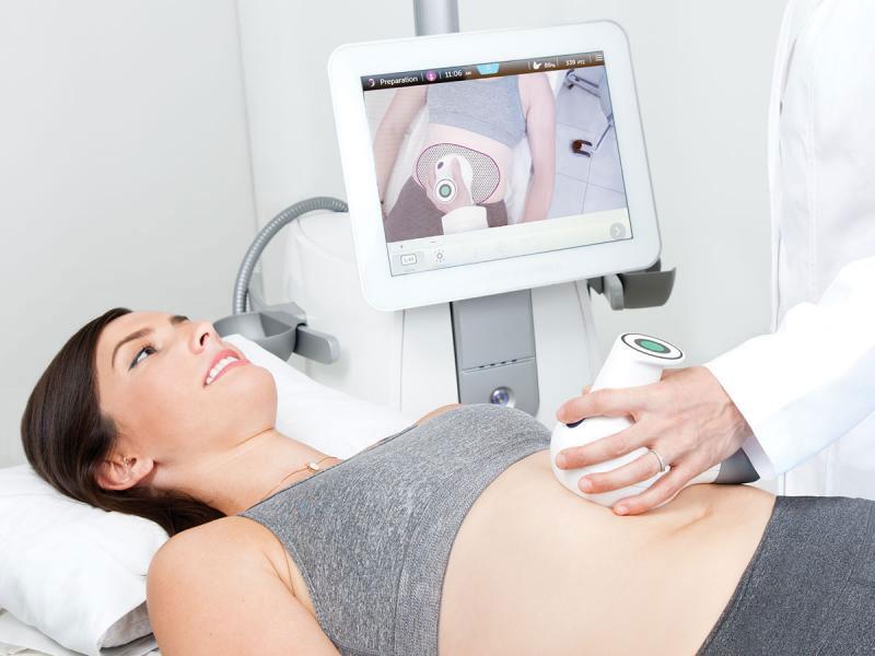 UltraShape Image of Woman getting treatment Advance Aesthetics Solutions Fort Myers FL